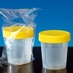 Urinbecher 125 ml mit Schraubdeckel steril (150 Stück)